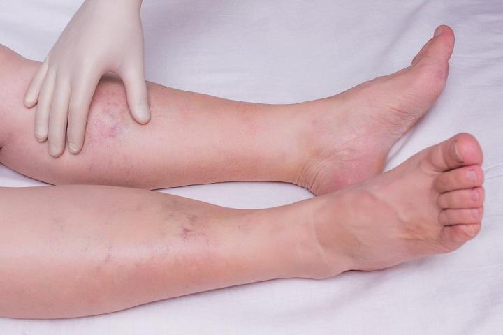 injekciók a visszeres lábakban
