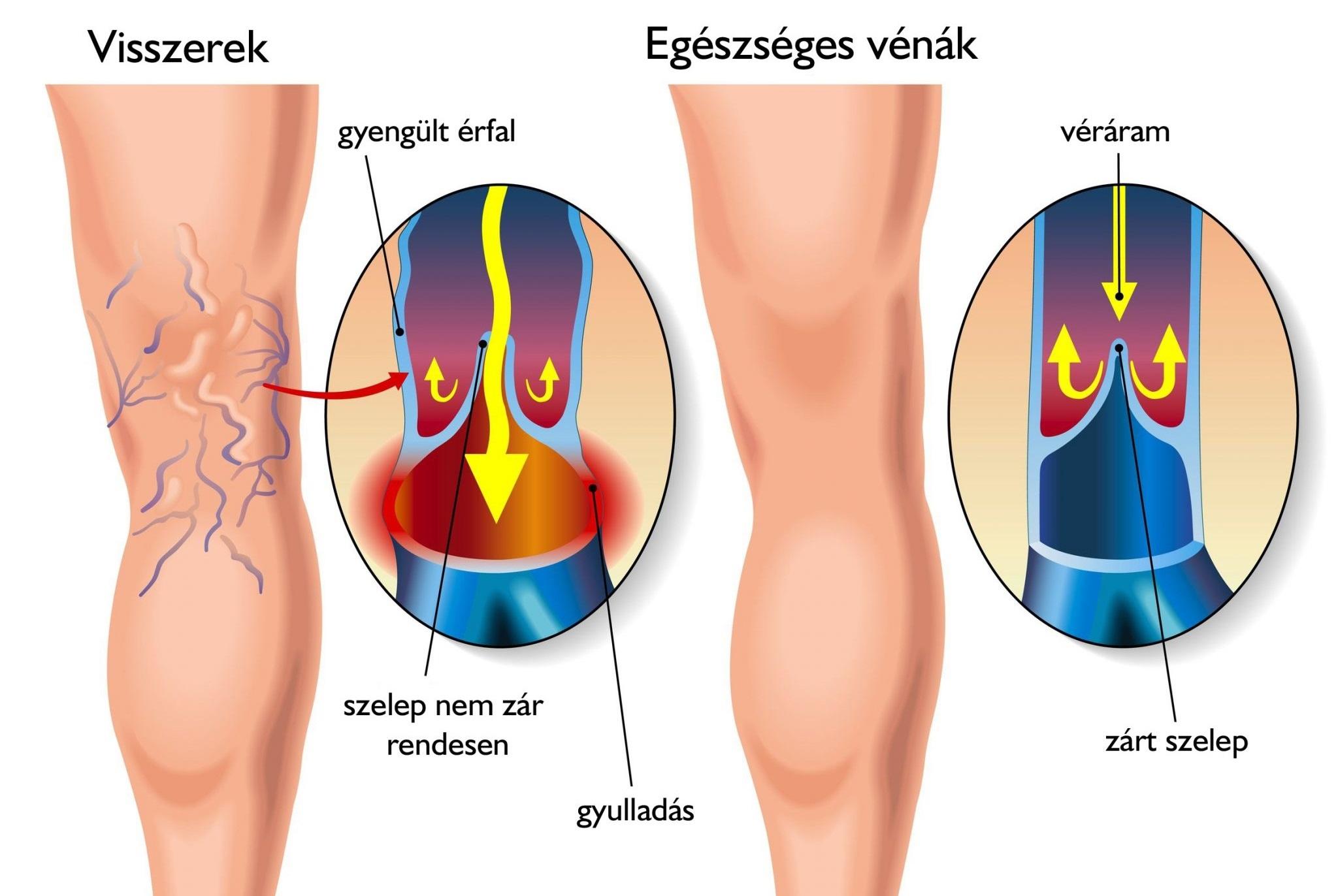 a böjt gyógyítja a visszér visszéreket a lábakon