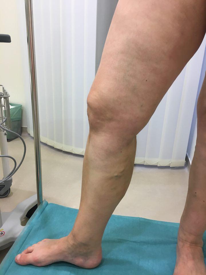lábműtét video visszér