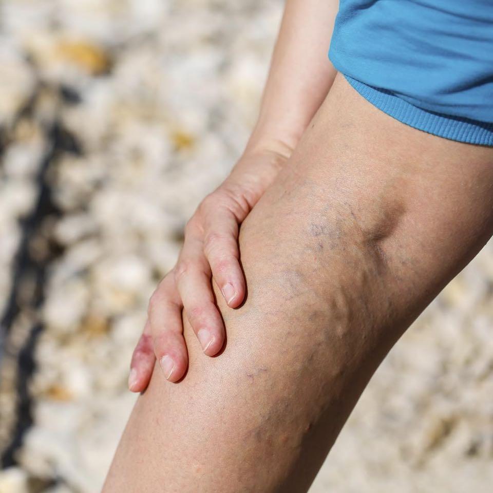 ne éljen sokáig visszerekkel visszér a lábujjakban és a lábakban