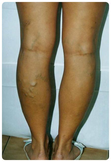 hogyan kell bekenni a lábát visszérrel visszér a vérrögök miatt