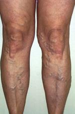 visszeres műtét után a láb