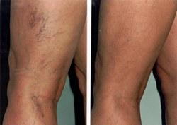visszér a lábakon lézeres kezelés)