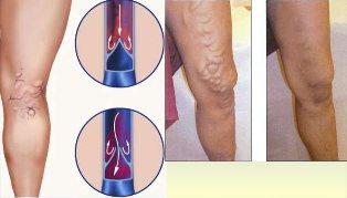 visszeres kezelés a lábakon férfiaknál