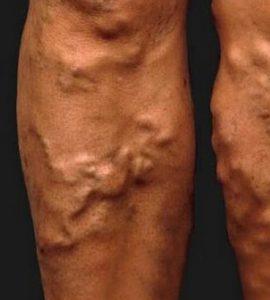 a hasi véna visszérgyulladása okozza