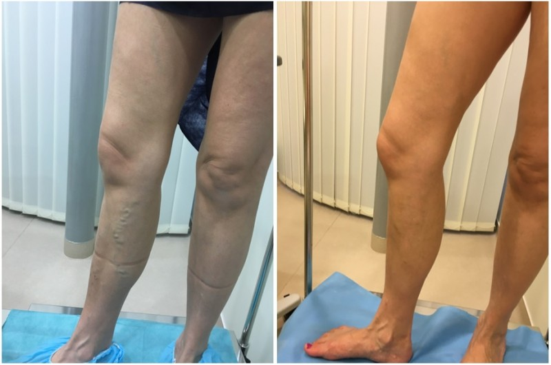 visszér a szkleroterápia előtt és után
