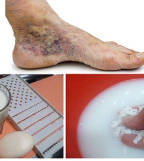 trombózis vagy visszér