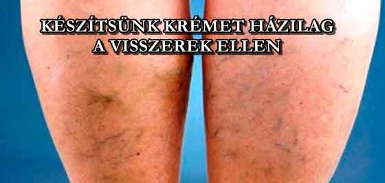 Priessnitz Medical visszérkrém