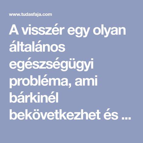 A magyar visszér a legszebb a világon | hu