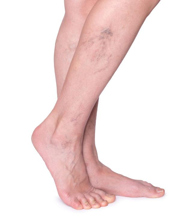 visszérgyakorlatokkal a lábakon orvos, aki visszereket kezelt