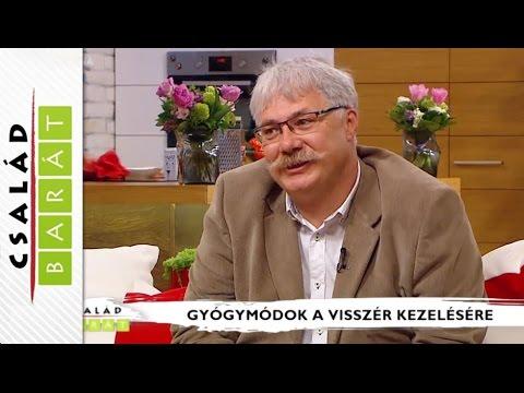 piócák visszér video)