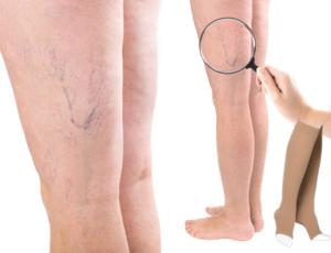 hogy néznek ki a fekélyek a visszér fotóval ha vékony lábak visszerek