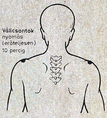 Hogyan lehet elkerülni a varikozust, vélemények