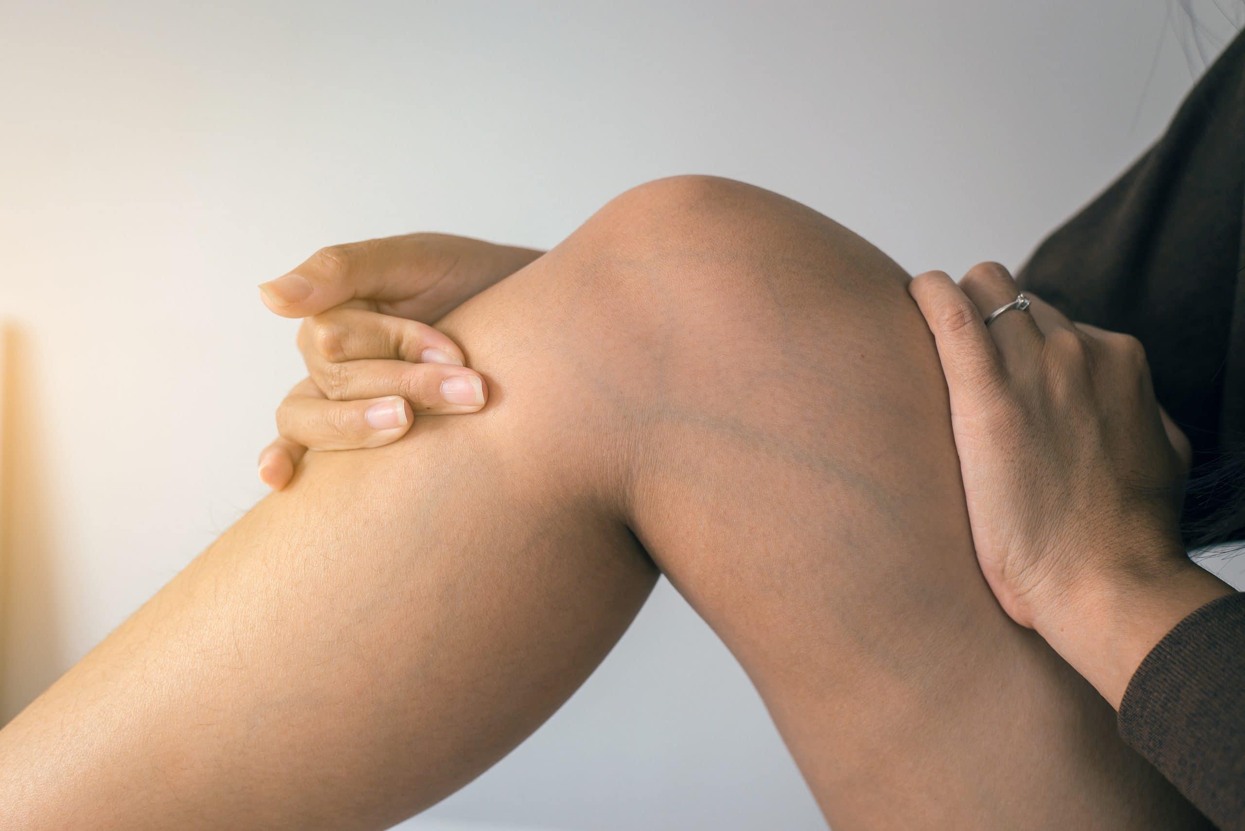 6 elváltozás a lábon, amire érdemes figyelni   BENU Gyógyszertárak