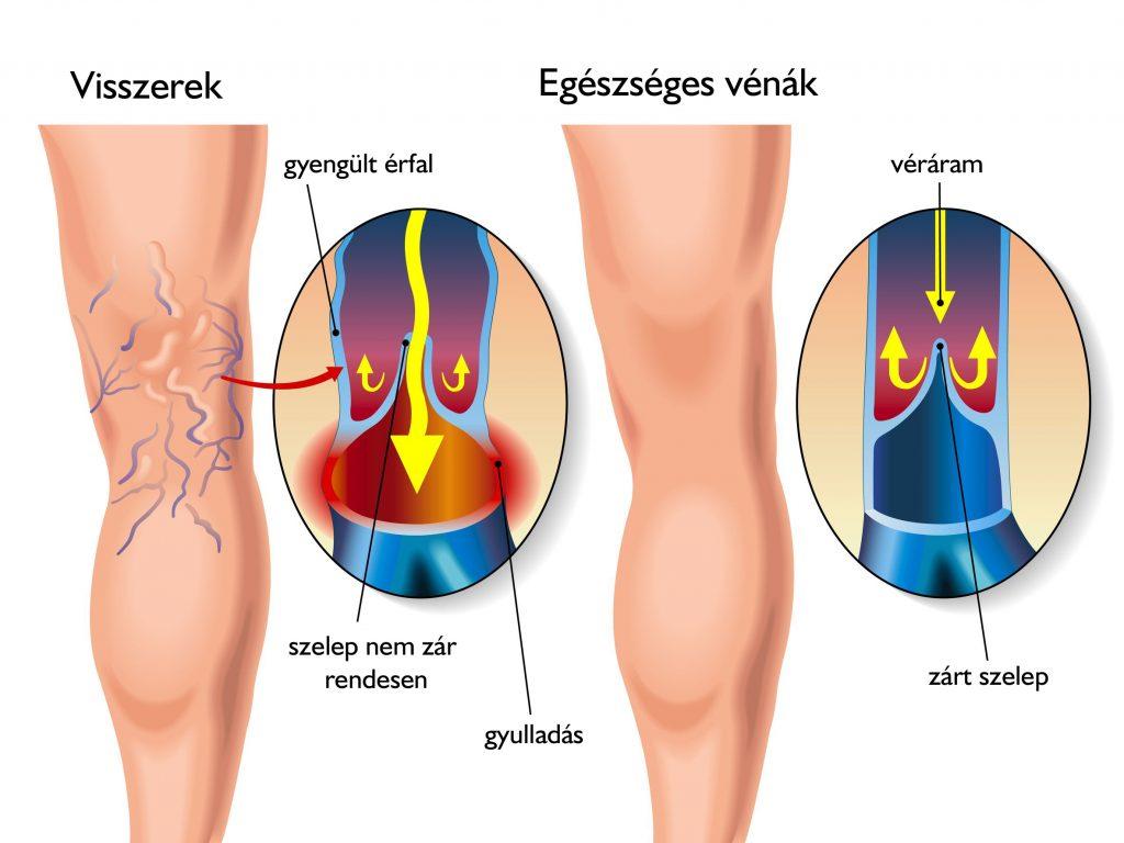 hogyan lehet eltávolítani a visszér támadását a varikózis kialakulása a lábakban