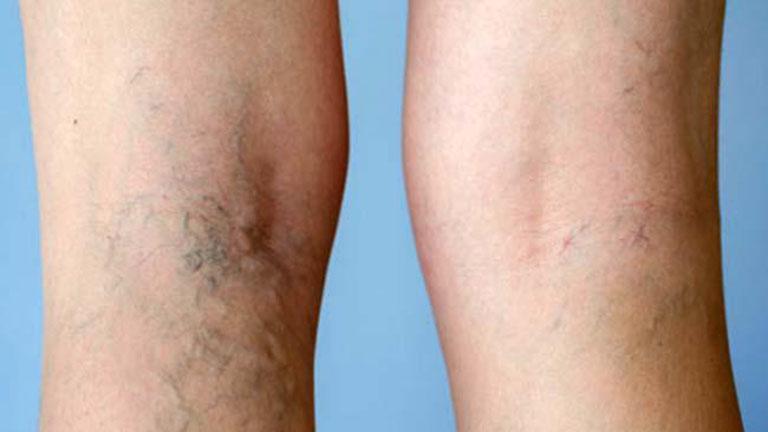 a csípő varikózisának megelőzése visszér gélek a lábak számára