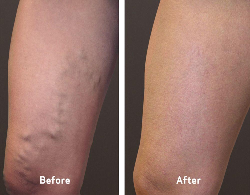 varikózus vénákat okoz a nőknél a lábakon)