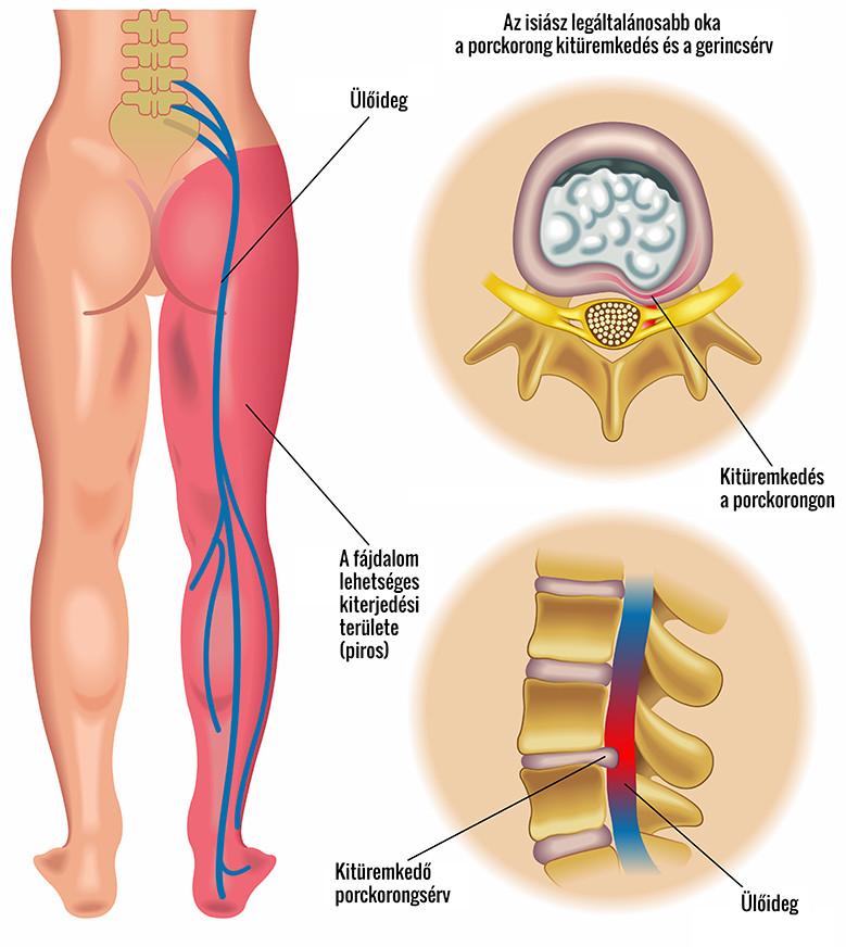 az alsó végtagok varikózisának oka