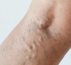 a lábakon visszeres hasznos termékek aki a visszér kezelését hol jobb