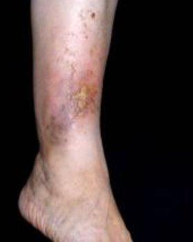 gesztenye visszér thrombophlebitis