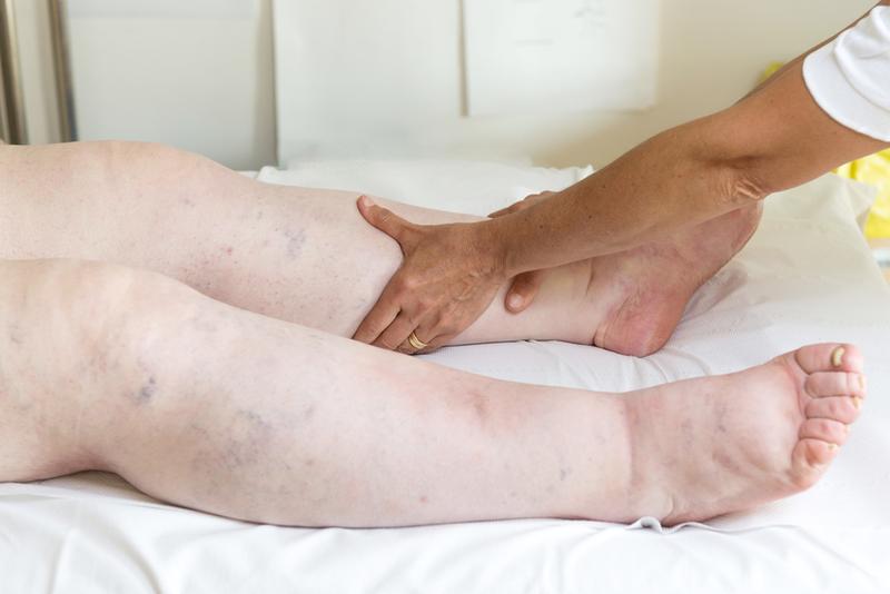 a lábak duzzanata a visszerek és a fáradtság miatt)