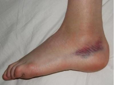 a lábak fejlett varikózisának tünetei)