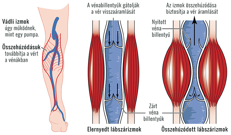 a lábakon visszérgyűrés