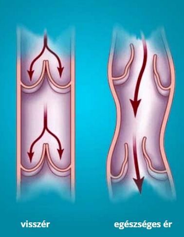 a varikózisos lábak kiütése)