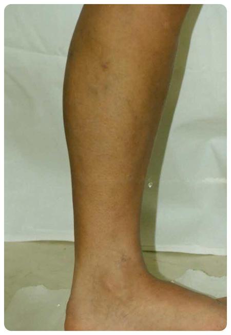 a visszér bekötése után a lábakat)