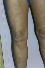 frissen facsart gyümölcslé visszérből irritáció a lábakon a visszér miatt