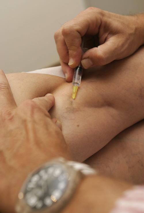 visszérrel mit csinálnak az injekciók hogyan kell kezelni a visszereket a lábakon
