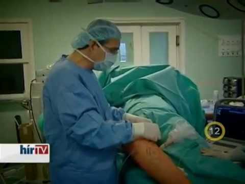 lábműtét visszér videó
