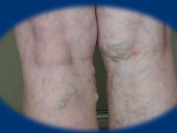 alsó végtag lézeres műtét visszerek