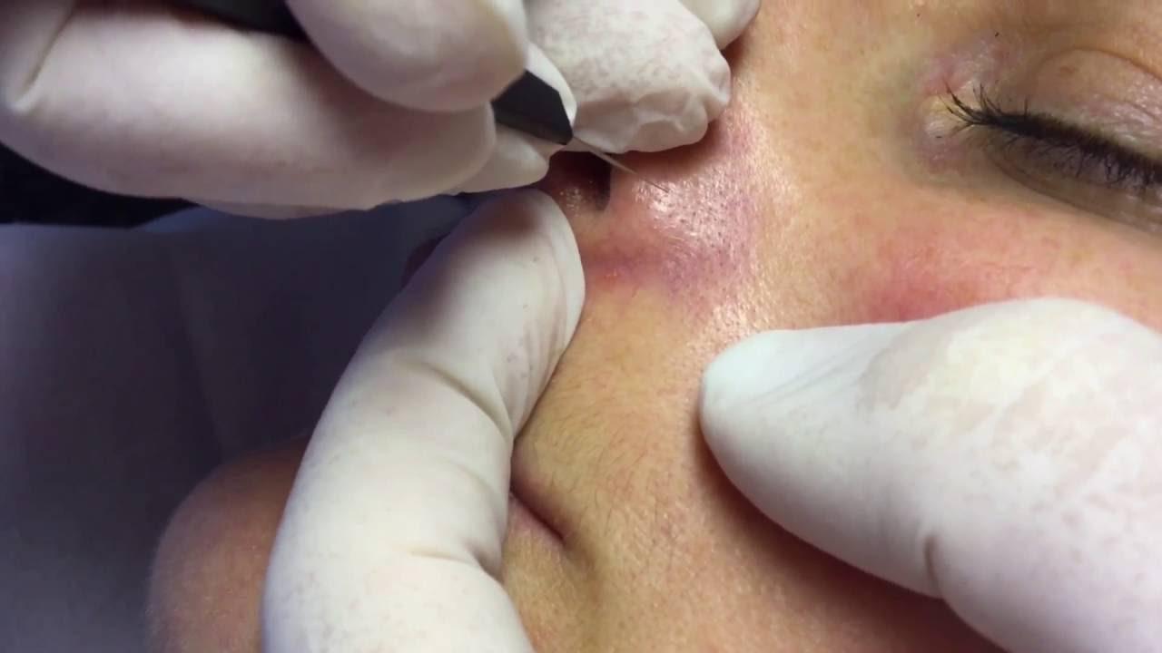 visszér az arcon kezelés
