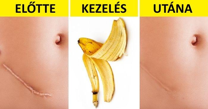banánhéj visszér ellen