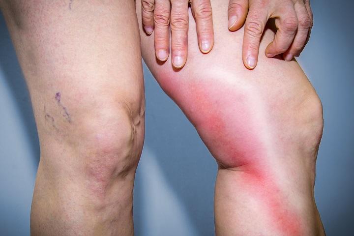 torna visszérgyulladás a lábakon