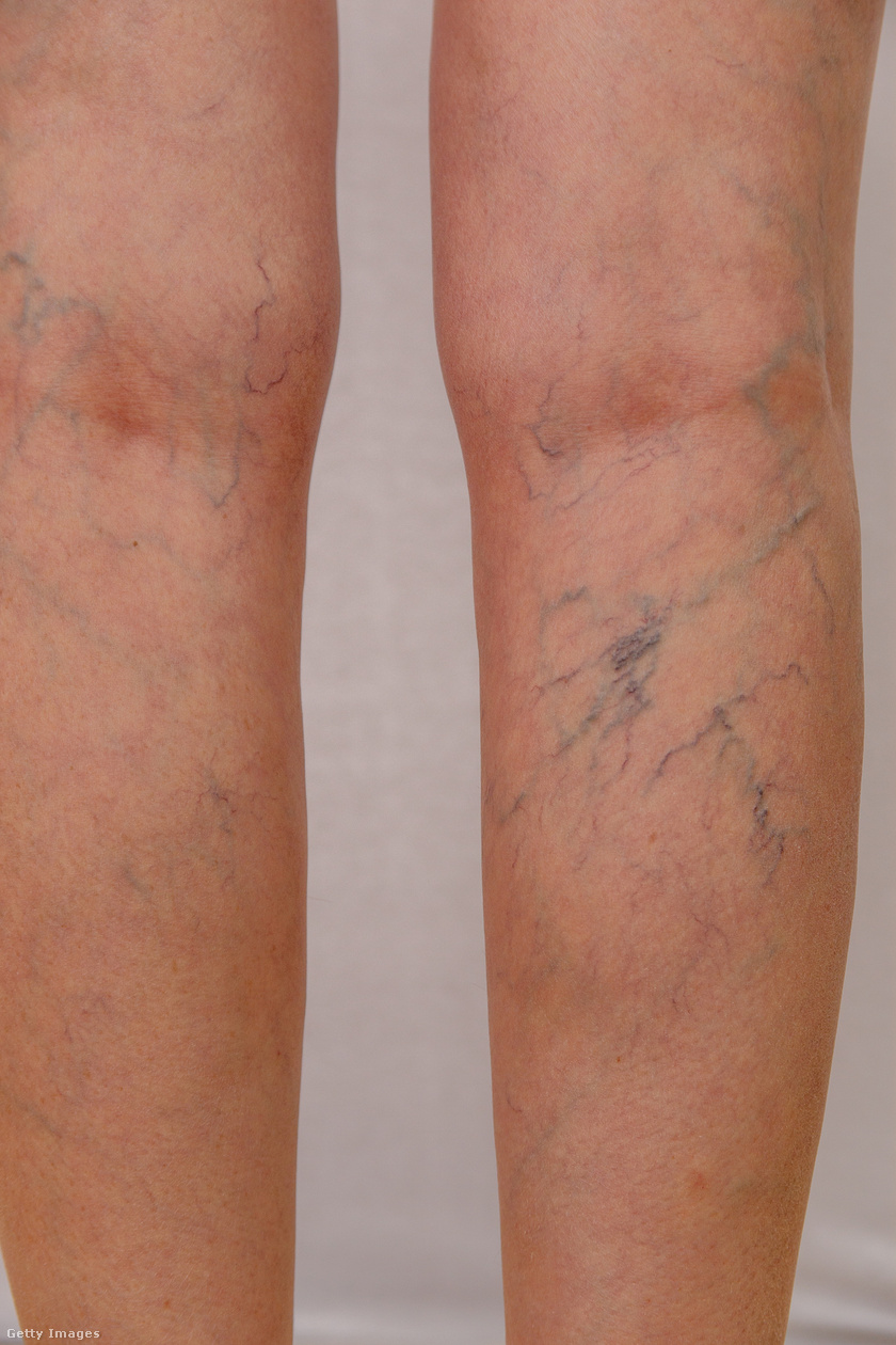 kötöző lábak visszerek esetén