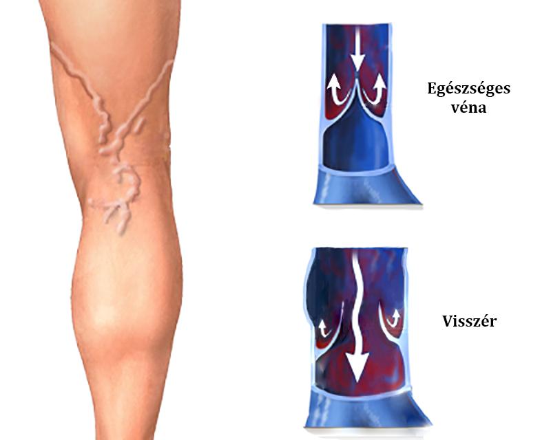 visszér kezelése a lábakon torna
