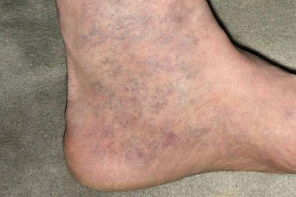 visszér otthoni kezelés videó visszér a lábakon hogyan lehet azonosítani