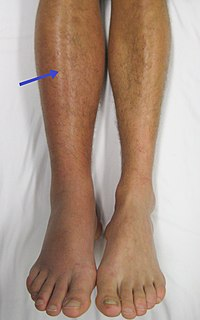 lábak visszér pszichoszomatika