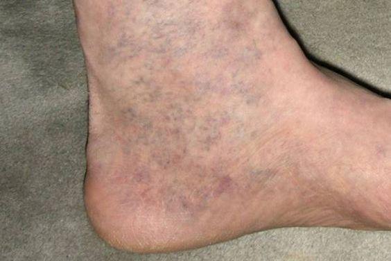 gyakorlat visszér ellen videó a lábon lévő varikózis növekszik