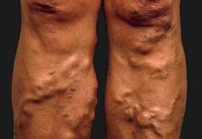 mi lehetséges a lábak visszérrel
