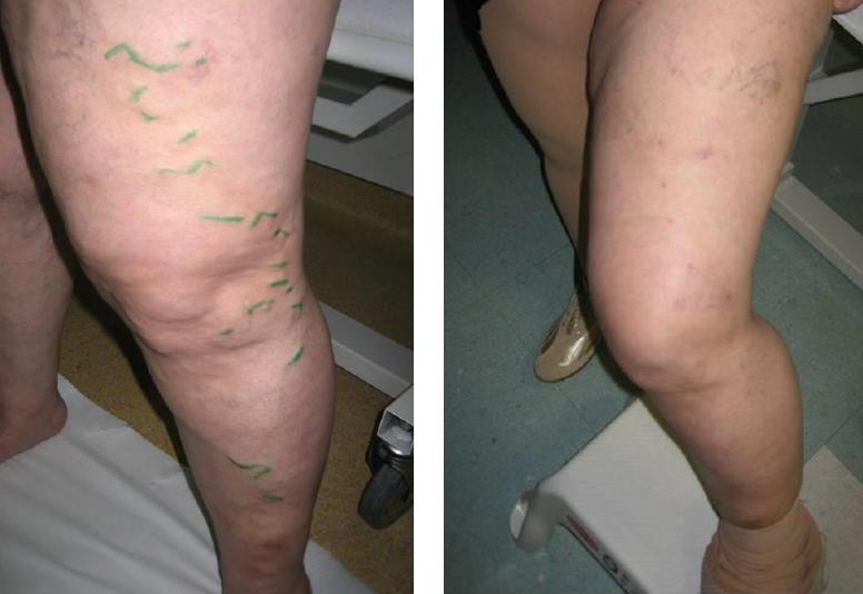 fájdalom műtét után visszér a lábon