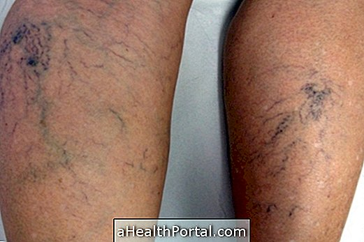 harisnyanadrág a varikózis kezelésére a lábakon)