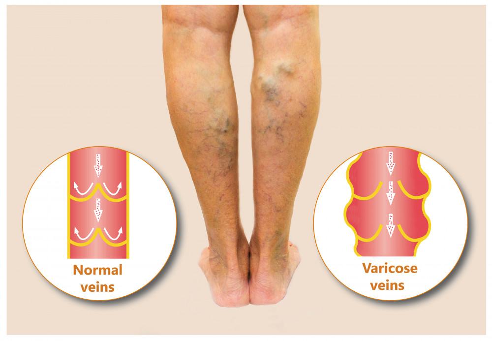 kijött a varikózis a lábán
