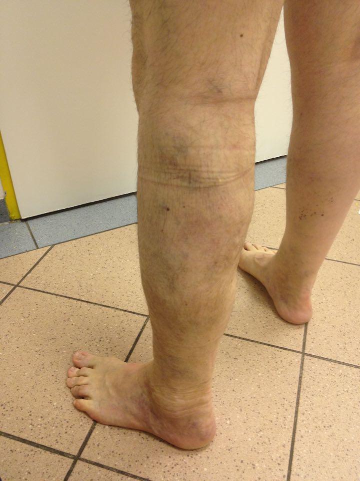 műtét visszér előtt és után