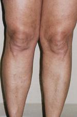 a lábakon lévő dudorok visszerek