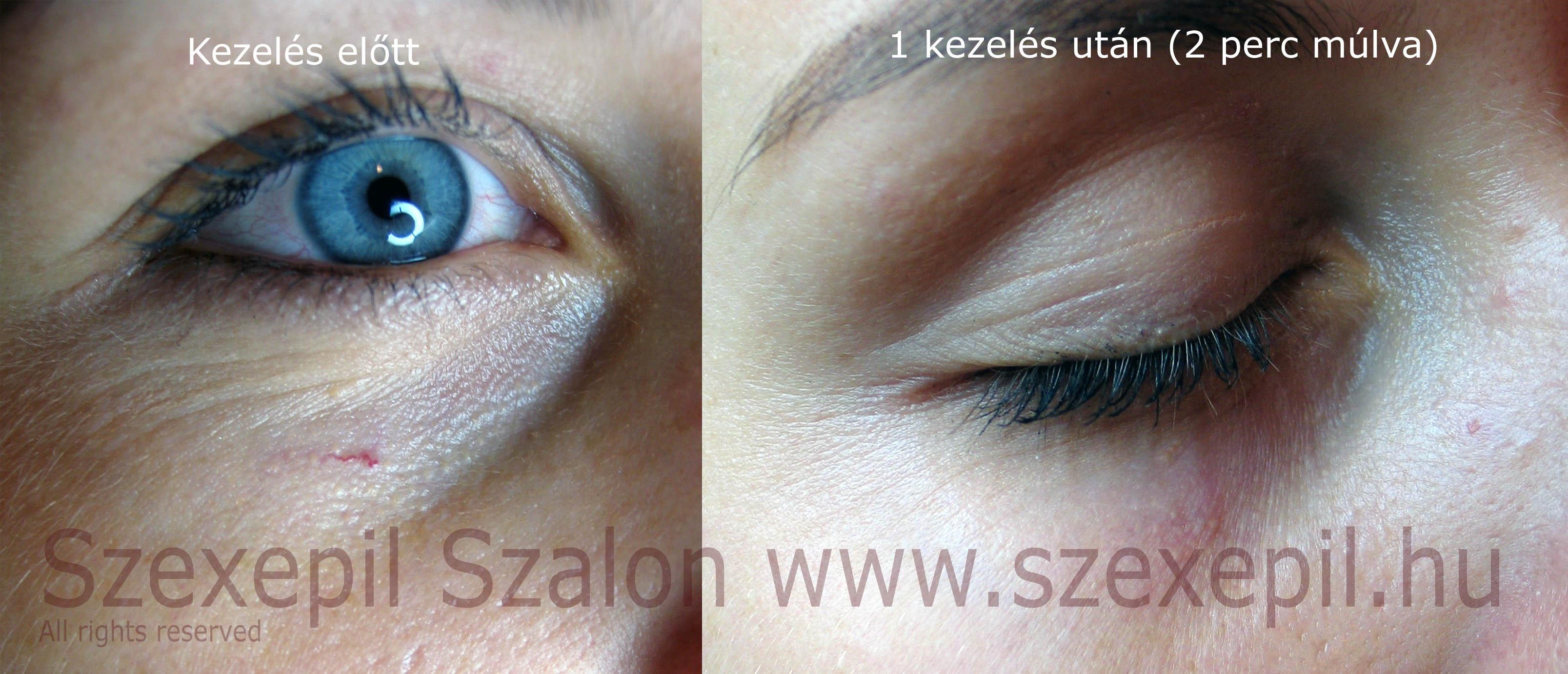 visszeres szem kezelés
