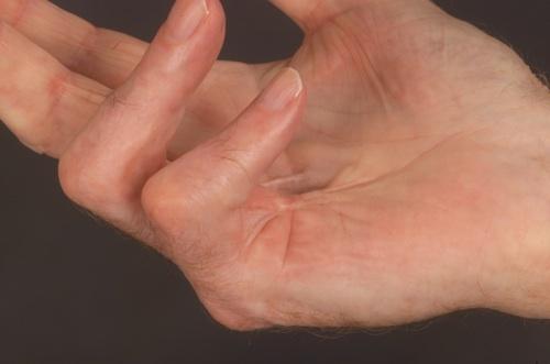 Csomók a tenyéren – komoly kézbetegségre figyelmeztetnek!