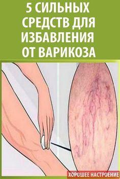 visszérbetegségek hatása)